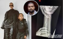 Kanye West兒子Saint手臂骨折 貼X光相表達心情