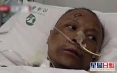 武漢兩醫生染疫後變「黑人」 1人已出院