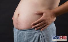 【Juicy叮】惊觉烟酒过多肥咗兼脱发 中年港男靠1招改善身体