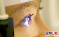 健康talk|錐形角膜或永久損害視力 激光打磨角膜術精準處理更低風險