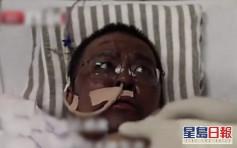 武漢染疫醫生脫險後驚變「黑人」專家指肝臟受損所致