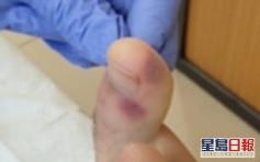西班牙專家稱腳趾起痘或為新冠病毒早期症狀