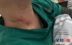 【武汉肺炎】不能接受岳父病逝  2名医生遭患者家属殴打