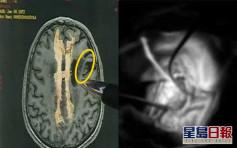 信生吞蛇膽能治百病 無知男遭11厘米長寄生蟲上腦險癱