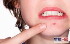 【健康talk】青春痘好發於青少年 中醫教用食療預防「爆瘡」