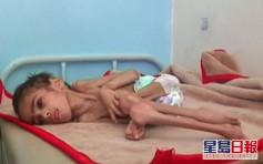 也門內戰釀嚴重飢荒 7歲男童皮包骨營養不良僅重7公斤