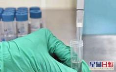 鍾南山團隊研新試劑 滴血檢驗新冠病毒約15分鐘有結果