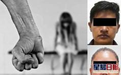 墨西哥7歲女童遍體鱗傷求醫生別救 揭父母長期虐待