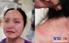 外籍确诊患者拒抽血 殴打并咬伤护士脸部