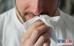 【健康talk】轉季鼻敏感發作 醫生教你三招有效通鼻