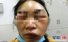 女子睡醒臉部暴腫差點窒息 以為被蚊叮就醫才知真相