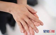 【健康talk】酒精消毒液搓幾下就夠?日本研究:要4分鐘先殺死病毒