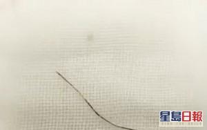 京漢「自行針灸」治腰痛 10厘米長針斷體內送院